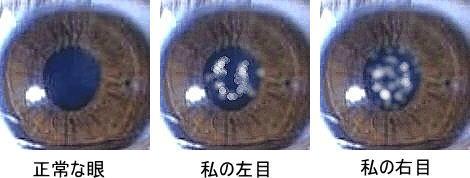 白内障のイメージ